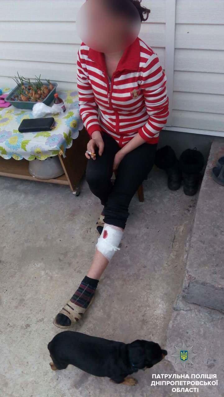 В Днепре мужчина кирпичем избил гражданскую жену (ФОТО) , фото-2