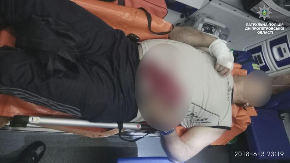 Массовая драка в Днепре с поножовщиной: есть пострадавшие, - ФОТО, фото-1