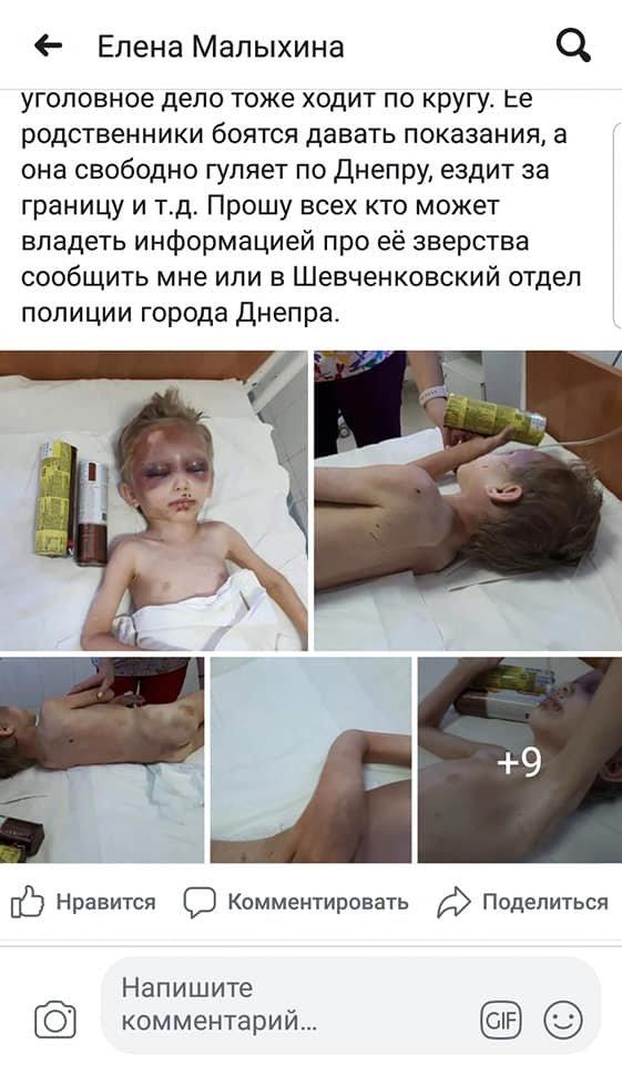 В Днепре женщина издевалась над усыновленным мальчиком в течении 4 лет, - ФОТО, 18+, фото-10