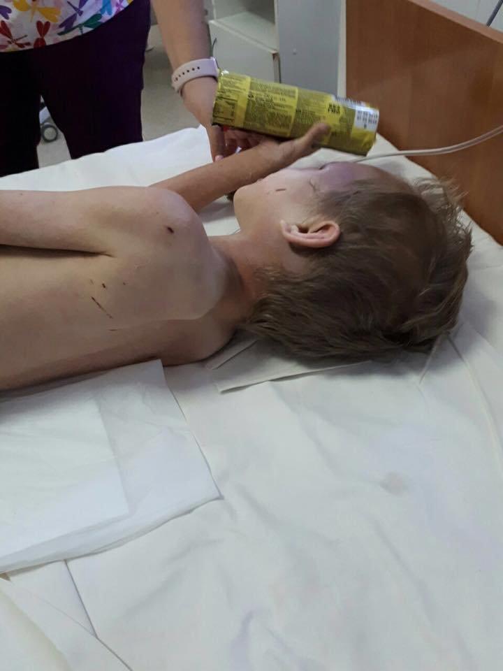 В Днепре женщина издевалась над усыновленным мальчиком в течении 4 лет, - ФОТО, 18+, фото-13