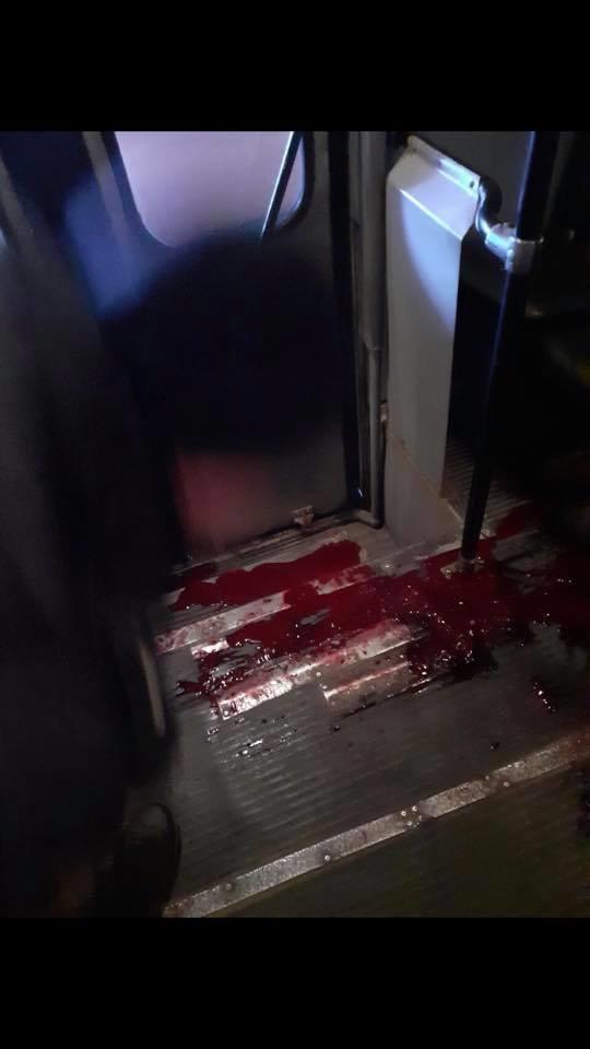 В Днепре в троллейбус вошёл окровавленный парень и умер, - ФОТО, фото-2