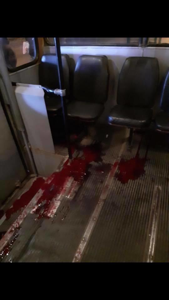 В Днепре в троллейбус вошёл окровавленный парень и умер, - ФОТО, фото-1