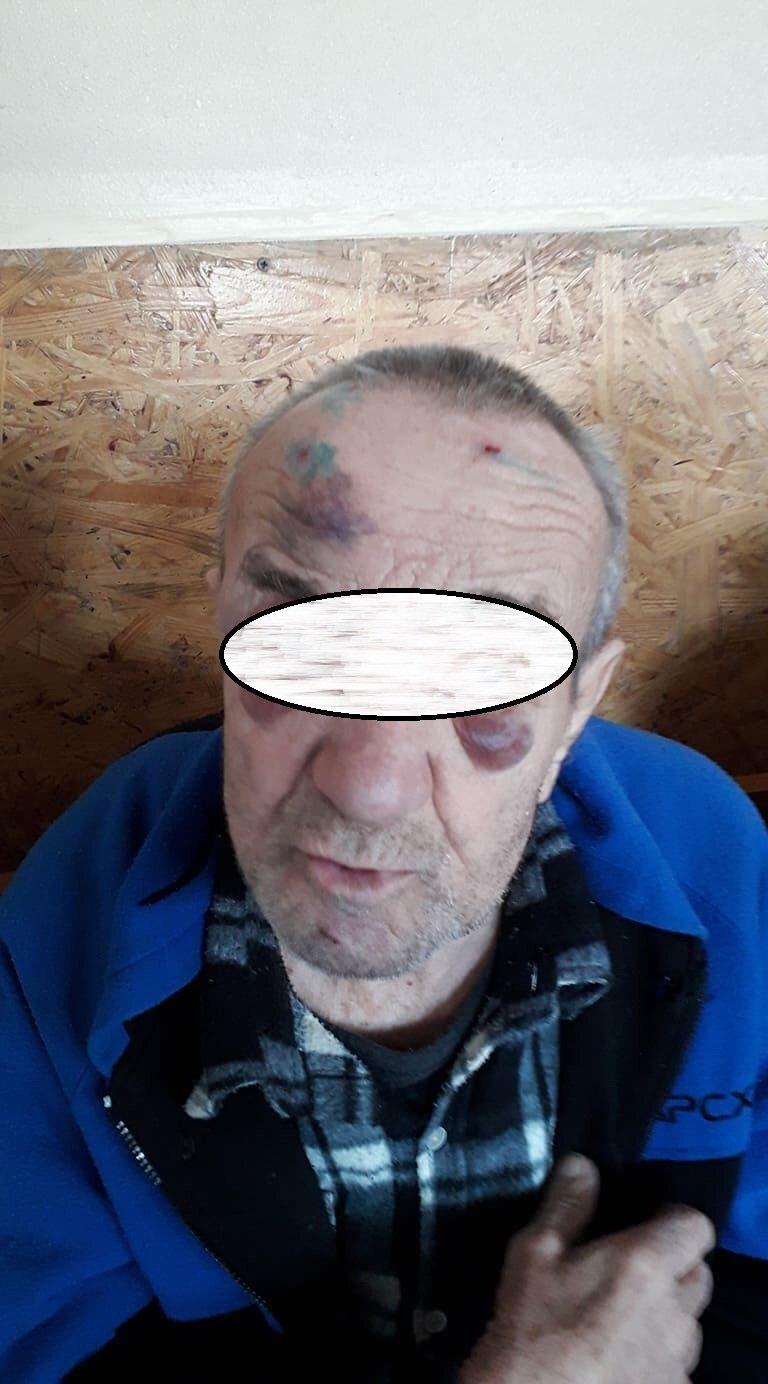На Днепропетровщине подопечных интерната пытали и принуждали к сексу со смотрителями, - ФОТО, фото-1