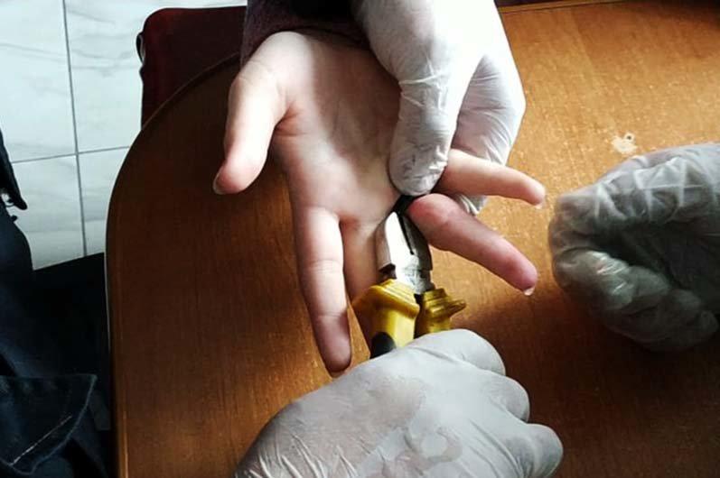 На Днепропетровщине девочка не смогла снять кольцо: спасатели разрезали его болгаркой, - ФОТО, фото-2