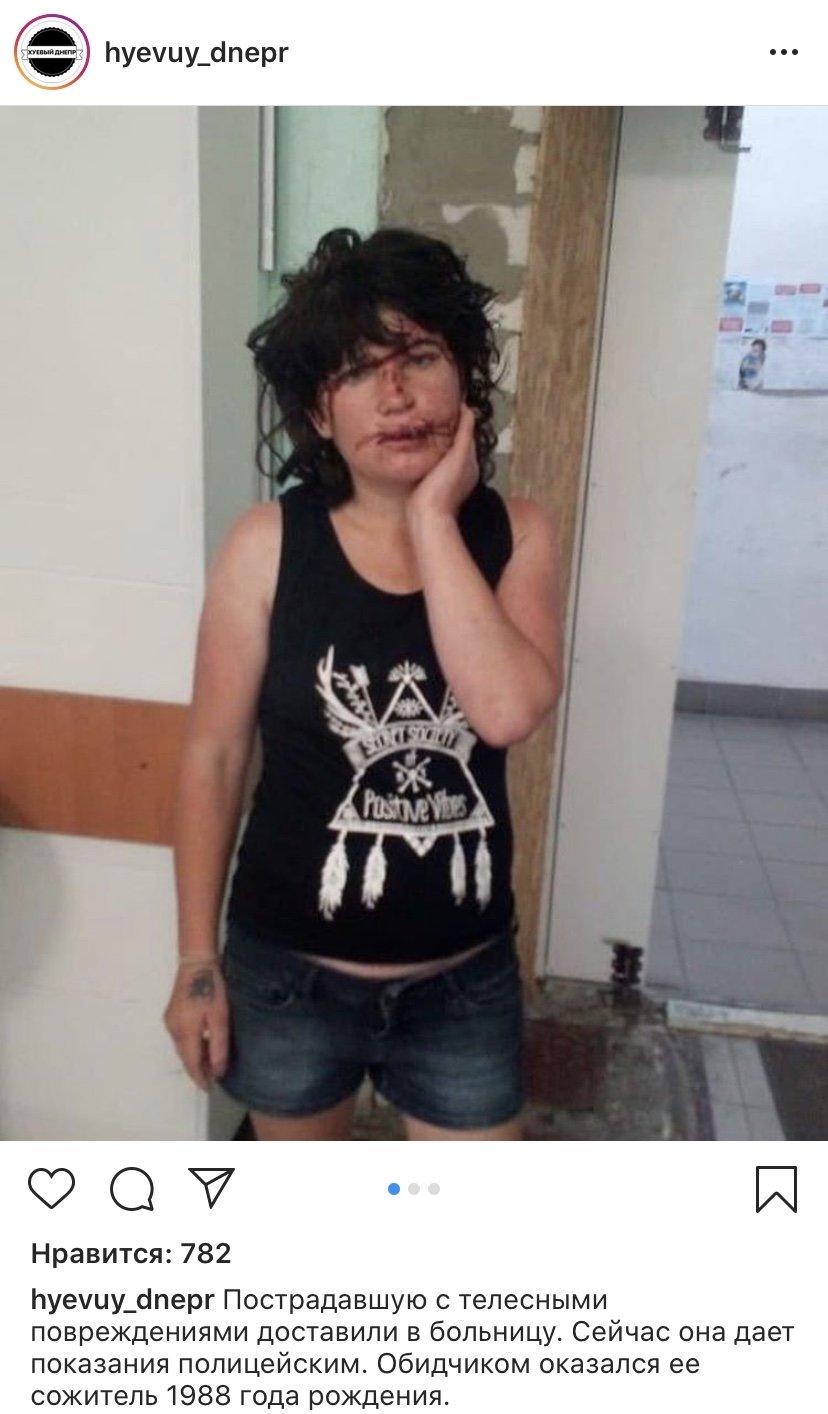 В центре Днепра избили женщину: мэр пообещал вознаграждение за поимку, обидчика задержали, - ВИДЕО 18+, фото-6