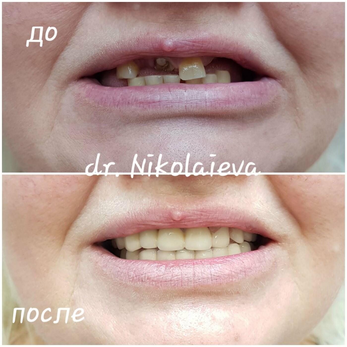 Стоматологии Днепра, где найти лучших специалистов и цены на услуги, фото-5