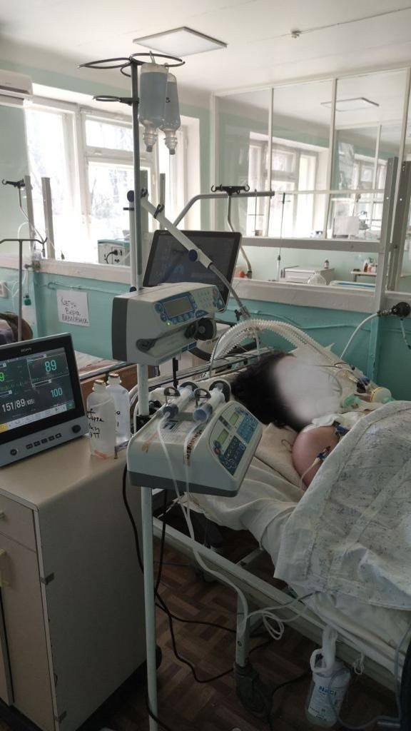 В Днепре перегружены реанимации больными на  COVID-19: все больше пациентов с 100% поражением легких , фото-2