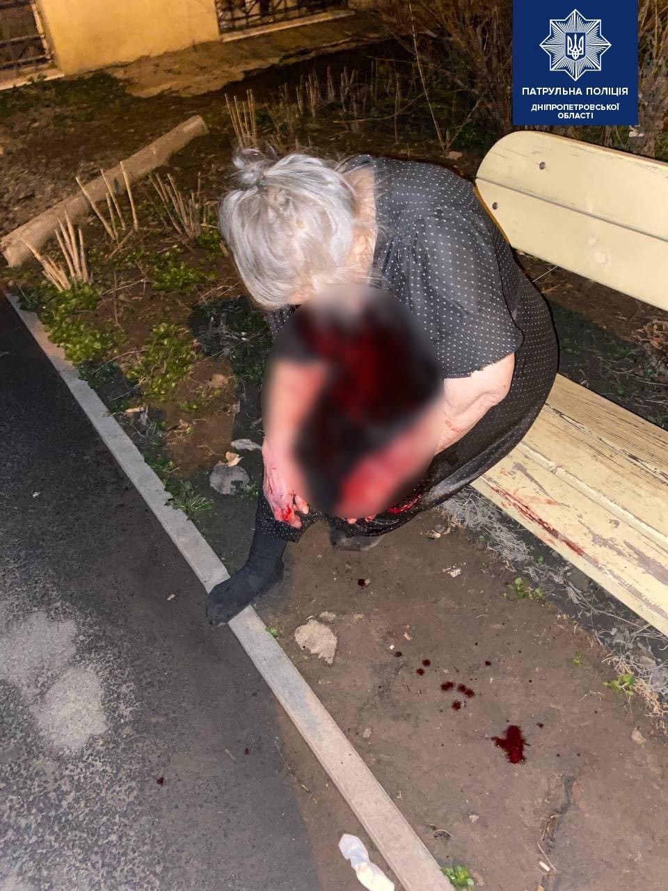 В Днепре на Поля окровавленная женщина сидела на лавочке: ее избил сын, - ФОТО, фото-1