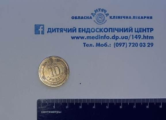 В Днепре спасли ребенка, который проглотил 10-гривневую монету, фото-3
